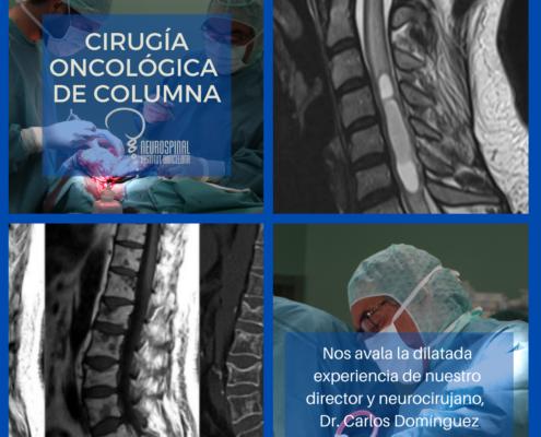 Cirugía oncológica de columna por el neurocirujano Dr. Carlos Domínguez Alonso de NeuroSpinal Institute Barcelona